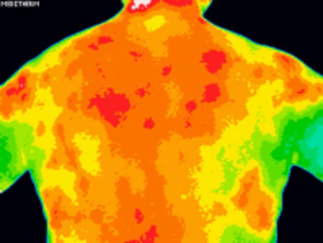 På halsen lymfekirtler Hævede lymfekirtler